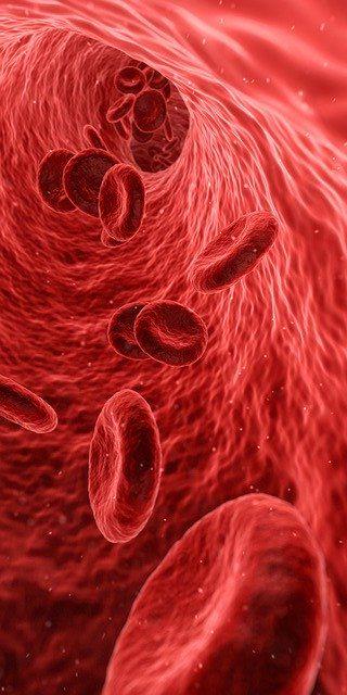 Aderlass, Hildegard von Bingen, Vorbeugung, Durchblutungsstörungen, Ohrgeräusche, Kopfschmerzen, Migräne, Cholesterin, Gicht, Rheuma, Arthritis, Harnsäure, Hormone, Wechseljahre, Bluthochdruck, Herz, Depression, Hauterkrankungen