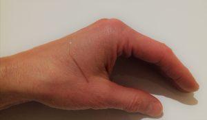 Augenakupunktur für die Augen
