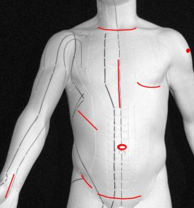 Narbenentstörung durch TCM Akupunktur