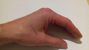Augenakupunktur nach den Erkenntnissen der ECIWO-Akupunktur